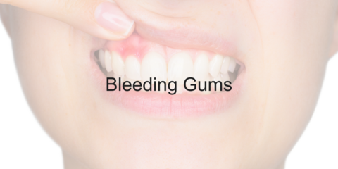 Bleeding Gums - Video