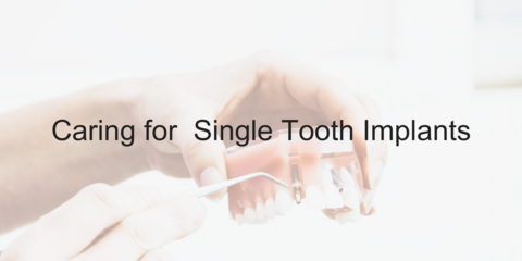 Caring for a Single Tooth Implants - Video