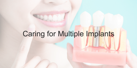 Caring for Multiple Implants - Video
