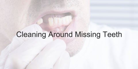 Cleaning Around Missing Teeth - Video